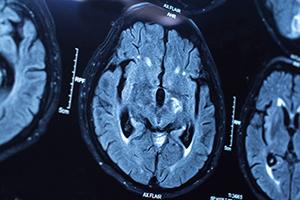 Good brain health is the focus of the #MyBrainHealthMatters social media campaign. Photo: iStock