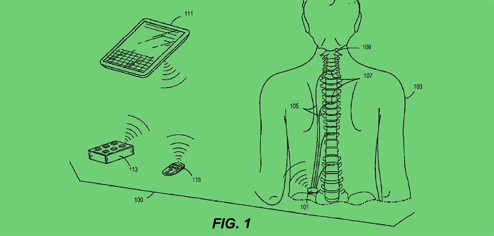 An illustration from Nuvectra Corporation's patent No. 9974108 shows paired communication between an implanted medical device and an external control device. [via USPTO]